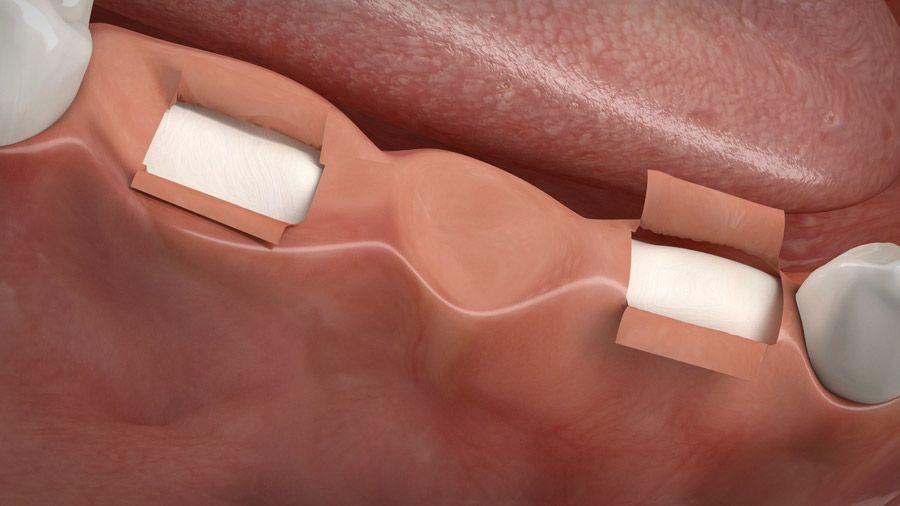 Implantatgetragene Brücke 02
