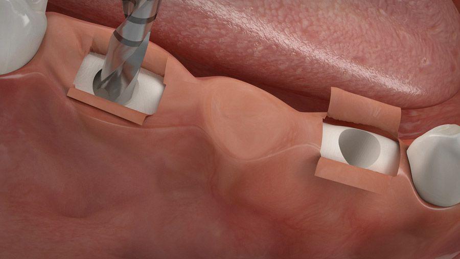 Implantatgetragene Brücke 03