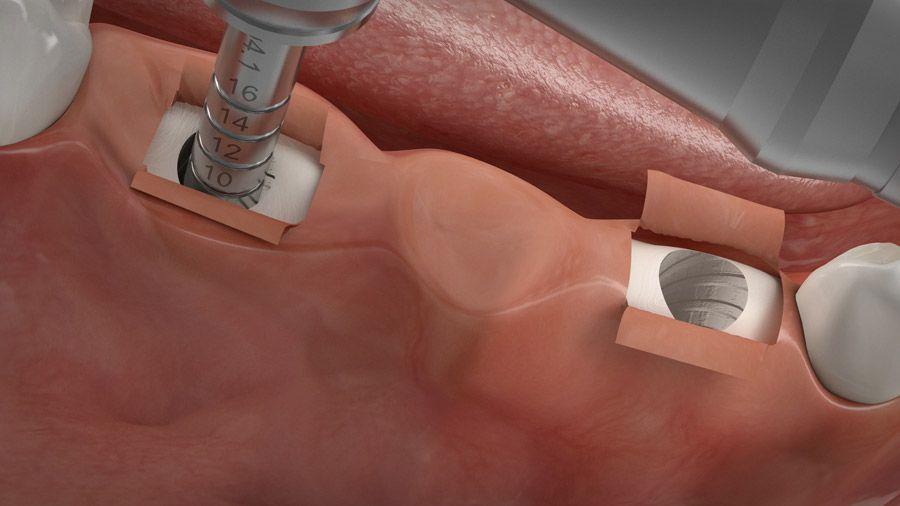 Implantatgetragene Brücke 04