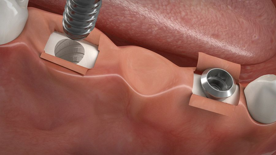 Implantatgetragene Brücke 05