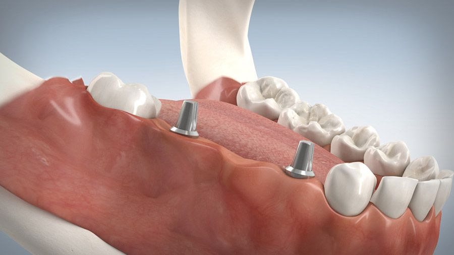 Implantatgetragene Brücke 10