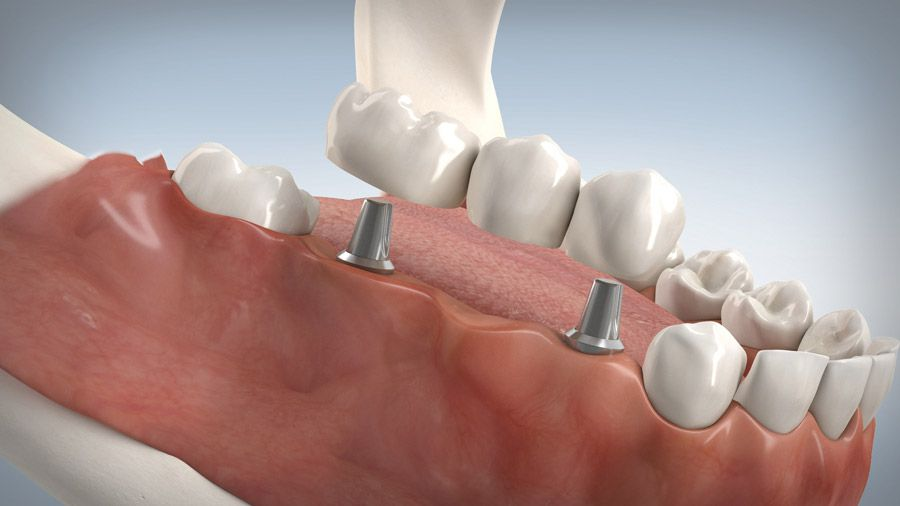 Implantatgetragene Brücke 11