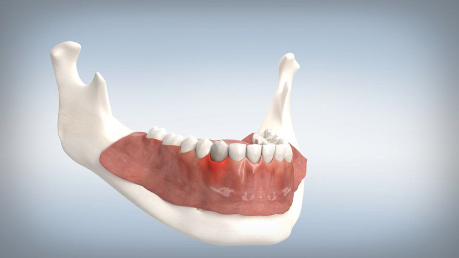 Parodontitisbehandlung 01