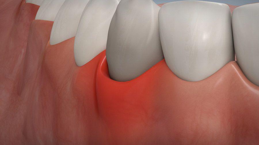 Parodontitisbehandlung 02