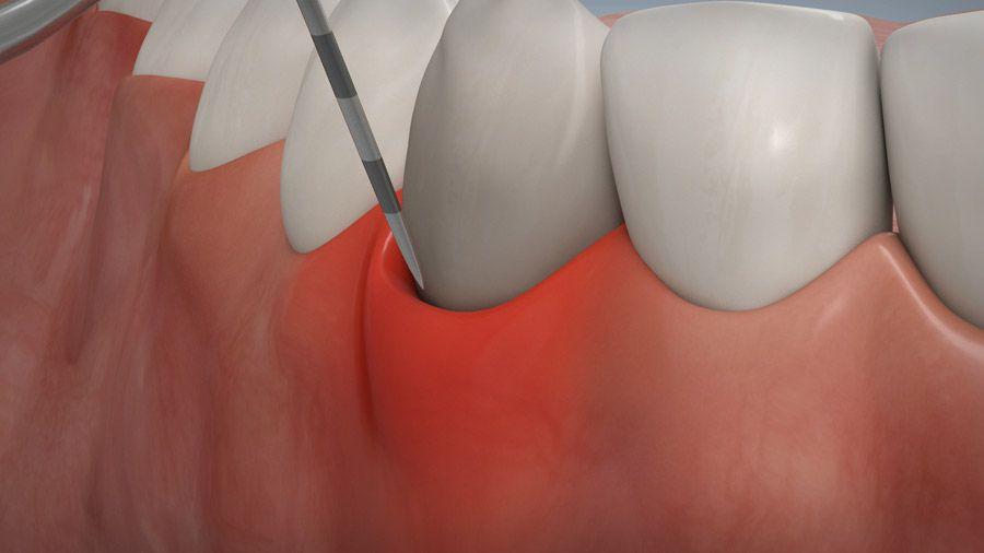 Parodontitisbehandlung 03