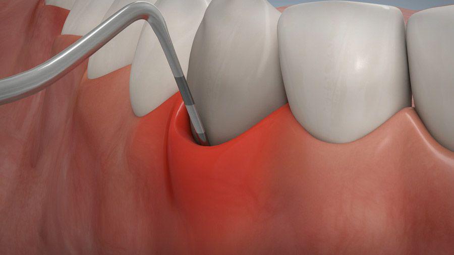 Parodontitisbehandlung 04