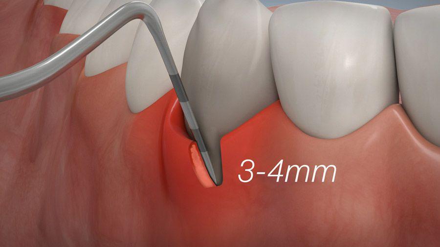 Parodontitisbehandlung 05