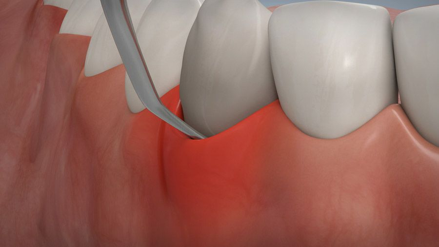 Parodontitisbehandlung 07