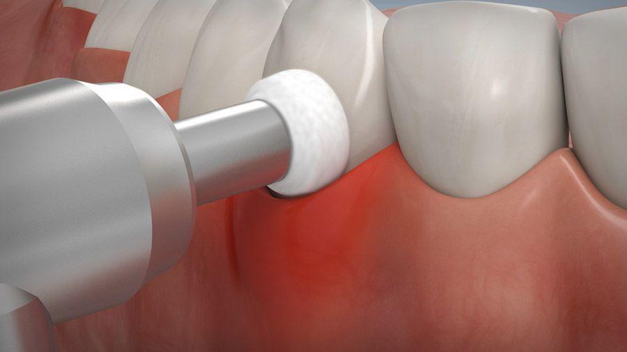 Parodontitisbehandlung 08