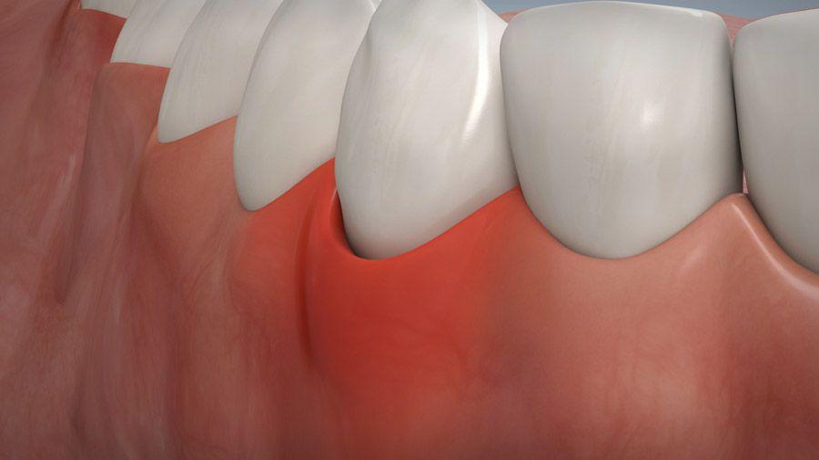 Parodontitisbehandlung 09