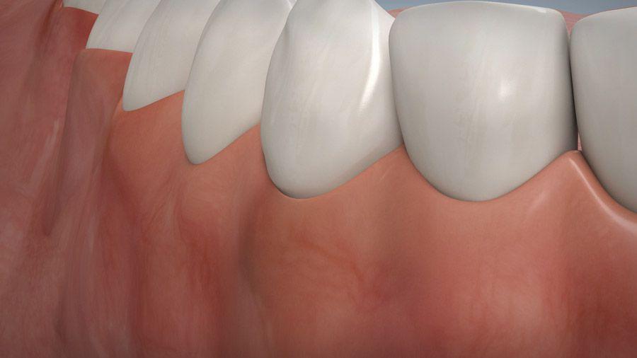 Parodontitisbehandlung 10