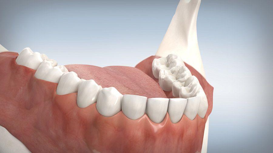 Parodontitisbehandlung 11