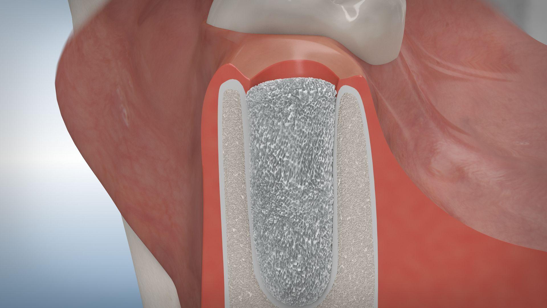 Knochenaufbau Zahnverlust