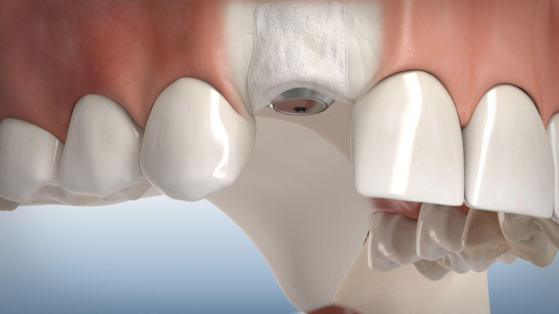 Knochenaufbau um Implantate
